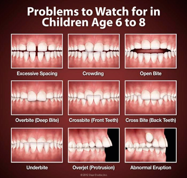 problems with childrens teeth